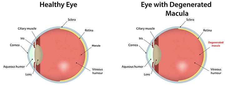 Healthy Eye vs Eye with Degenerated Macula